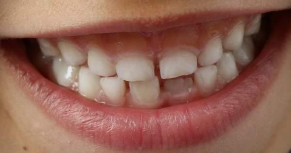 Las células madre y los tratamientos odontológicos