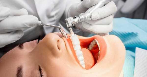 Limpiezas dentales ultrasónicas o manuales ¿Cuál es mejor