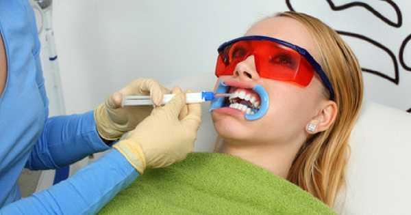 Los blanqueamientos dentales tienen efectos secundarios