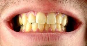 ¿Por qué los dientes se ponen amarillentos?