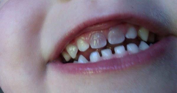 ¿Por qué mi hijo tiene un diente descolorido?