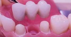 Puentes dentales fijos ¿Qué sabes de ellos?