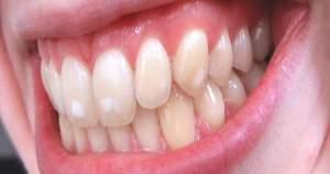 Qué es y cómo prevenir la fluorosis dental