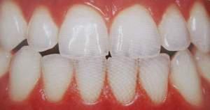 ¿Qué es y cómo se protege el esmalte dental?