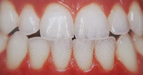 ¿Qué es y cómo se protege el esmalte dental