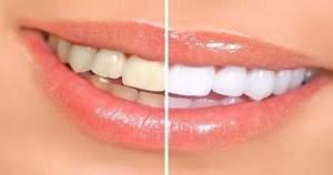 Razones para mantener los dientes blancos