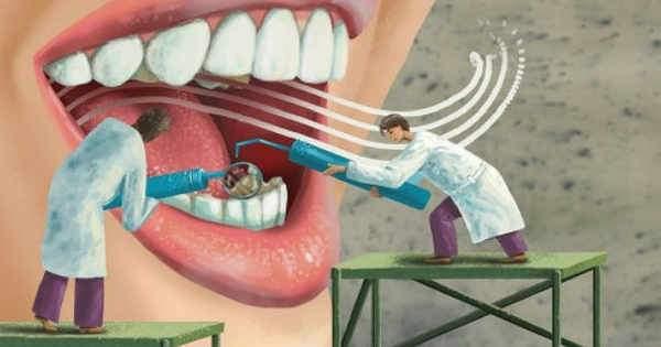 Remodela tu sonrisa con el contorno dental