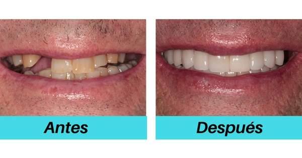Repercusiones al no reemplazar un diente perdido