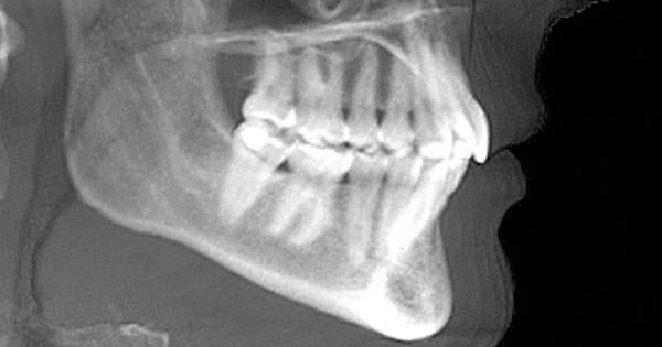 ¿Sabes que esperar al tomarte una radiografía dental?