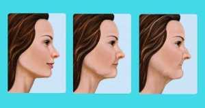 ¿Sabías que los dientes intervienen en la longitud y forma de tu cara?