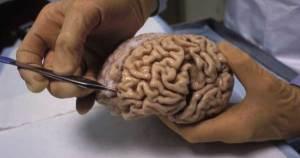 ¿Sabías que tu seguro dental también protege tu cerebro y tu corazón?