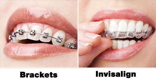 ¿Son mejores los brackets o los Invisalign?