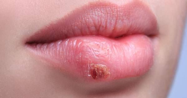 Tratamiento para las aftas o úlceras bucales