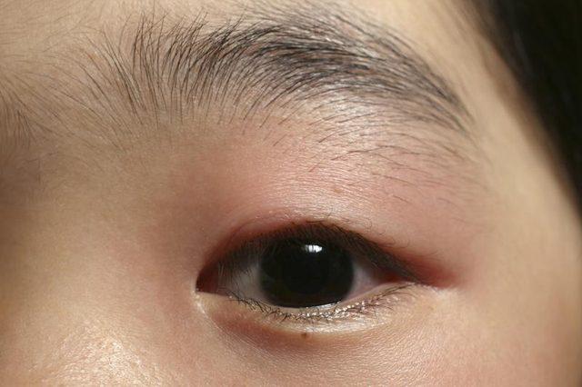 Oil Eyelid Duct Blocked