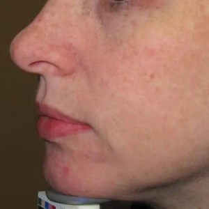 Sun Damage IPL treatment after, Langhorne, PA