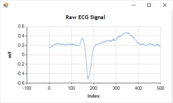 Detail Raw ECG Signal