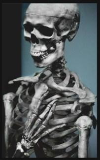 Oh My Aching Bones