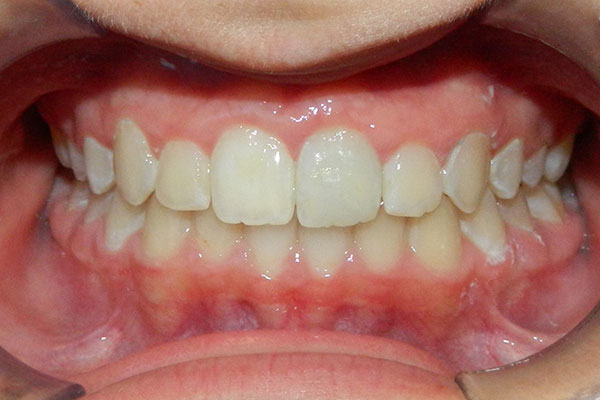 Before and After - Central Coast Orthodontics | Santa Maria CA