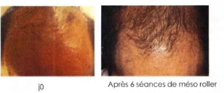 Alopécie-Traitement