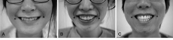 Types-de-sourires