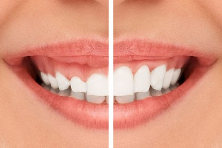 gingivectomie-sourire-gingival
