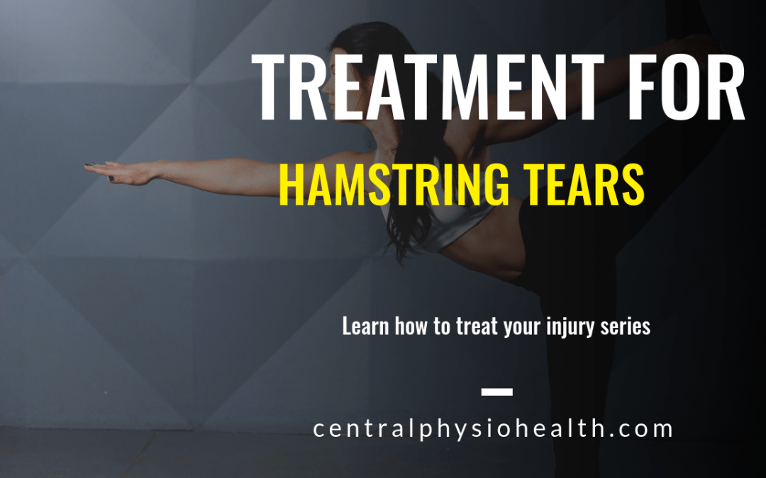How to treat hamstring tears