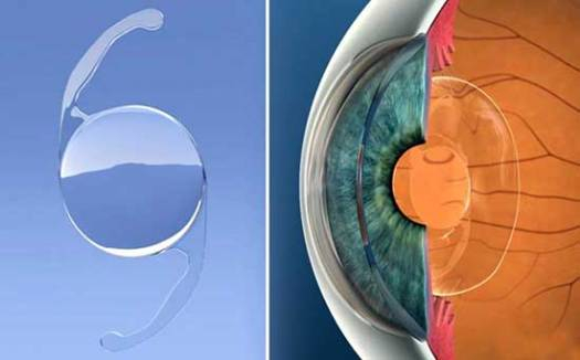 Trifocal Lenses for Cataract and Lens Replacement Surgery
