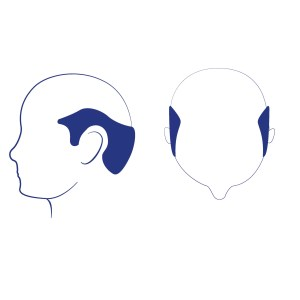 Phase 7 - C'est la forme de perte de cheveux la plus avancée ou la plus sévère. Il reste seulement une étroite bande de cheveux sur les côtés et à l'arrière de la tête sous forme de fer à cheval. Ces cheveux peuvent être plus minces et moins denses qu'auparavant. Les cheveux sur les deux oreilles sont clairsemés sous forme semi-circulaire.