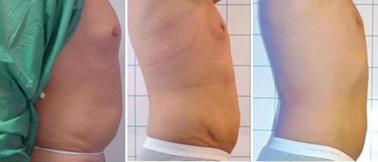 Laserlipolisi - trattamento addome - CMP Pavia
