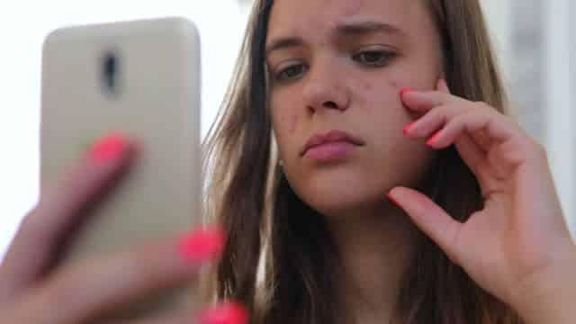 Tratamento do acne com dermapen
