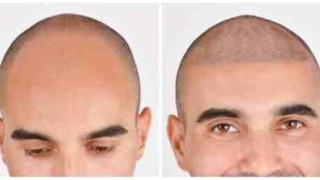 Micropigmentação couro cabeludo