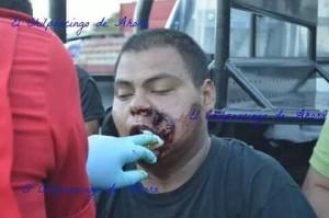 Estudiante con herida de lanzagranadas.