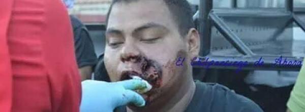 11 nov, H.I.J.O.S. México: Ante brutal represión contra normalistas de Ayotzinapa
