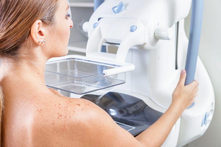 mujer-mamografia-768x512-1.jpg?fit=768%2C512&ssl=1