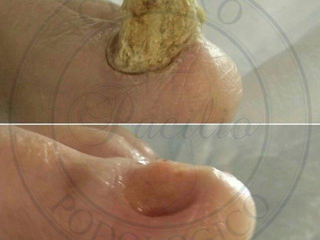distrofia unghia unghia
