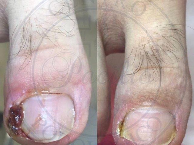 cura unghia incarnita napoli