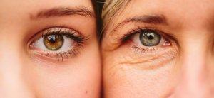 Botulino per le rughe degli occhi