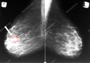 mammografia esame tumore