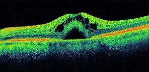 OCT: la Tomografia Ottica Computerizzata presso il Centro San Camillo di Bari, Ambulatorio di Oculistica
