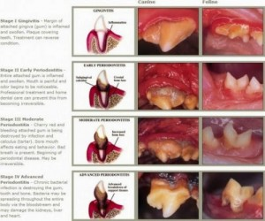 4-stages-periodontal