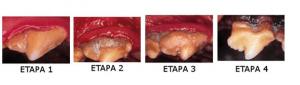etapas periodontitis