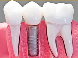 Dental Implants 3