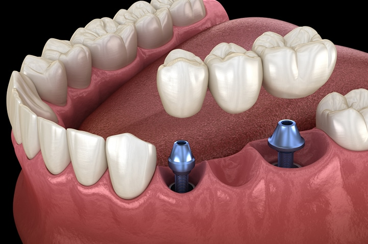 Benefits Of Choosing Century Stone For Same-Day Dental Crowns & Bridges 2