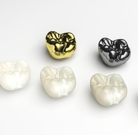 Dental Crowns & Bridges 1