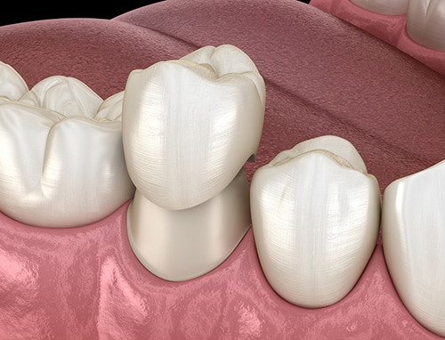 Will Dental Insurance Cover Crown Replacement? 1