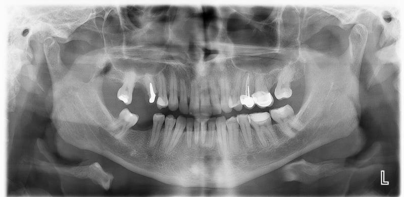 Sector Superior Derecho, con aproximadamente 3 mm altura hasta el seno para nasal.