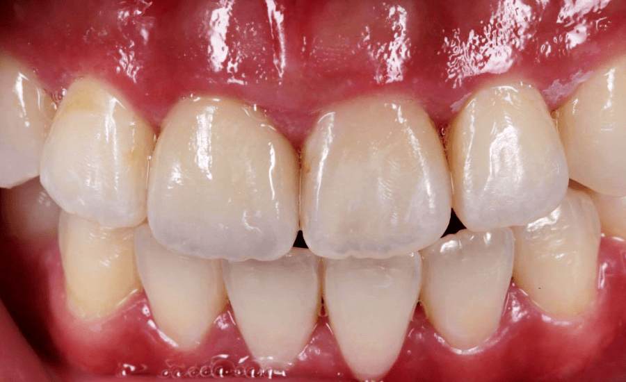Case report: 11 crown with Triluxe Forte Software: Cerec Premium 4.4.4