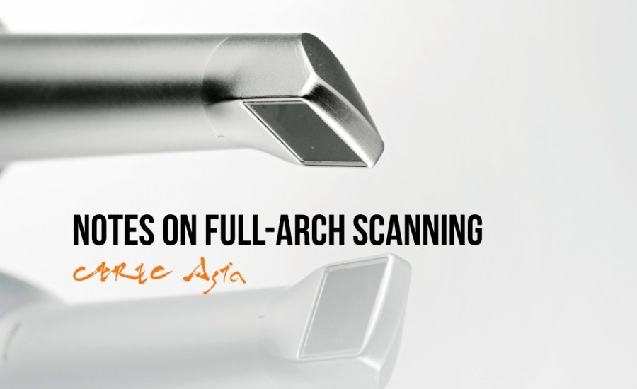 Not All Scans Are Equal Full-arch scanning with CEREC Omnicam