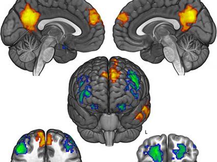 ARTICLE. Comment le cerveau refuse de changer d'opinion politique (et religieuse).