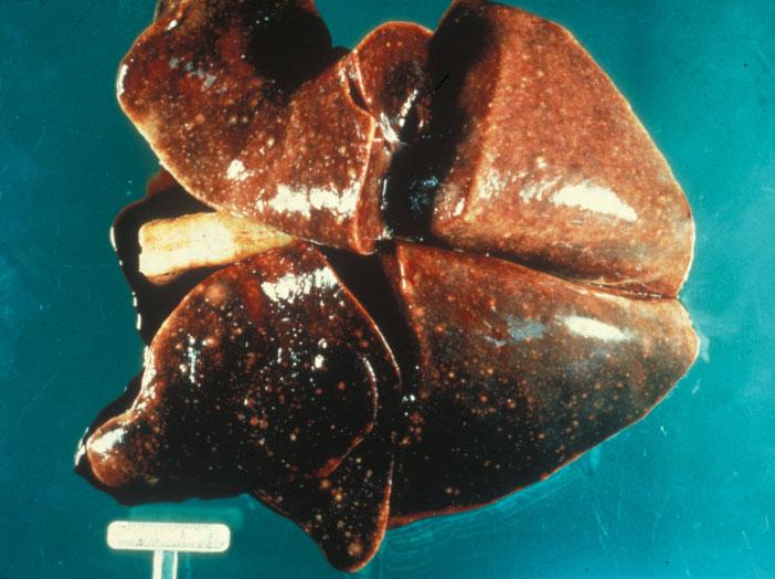 Toxoplasma Gondii Cat Lung